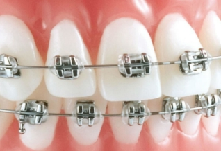 Remboursement de l'orthodontie adulte