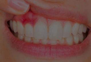 Quelles mutuelles remboursent bien la parodontologie ?