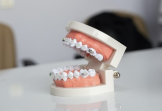 Meilleure mutuelle orthodontie adulte
